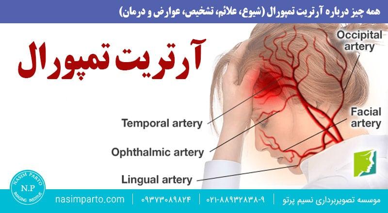همه چیز درباره آرتریت تمپورال (شیوع، علائم، تشخیص، عوارض و درمان)