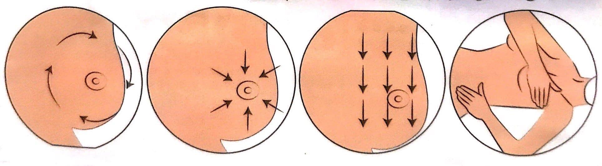 خودآزمایی پستان (معاینه فردی پستان)